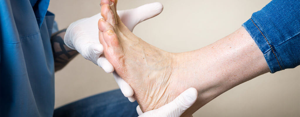 custom foot orthotics chiron physical therapy